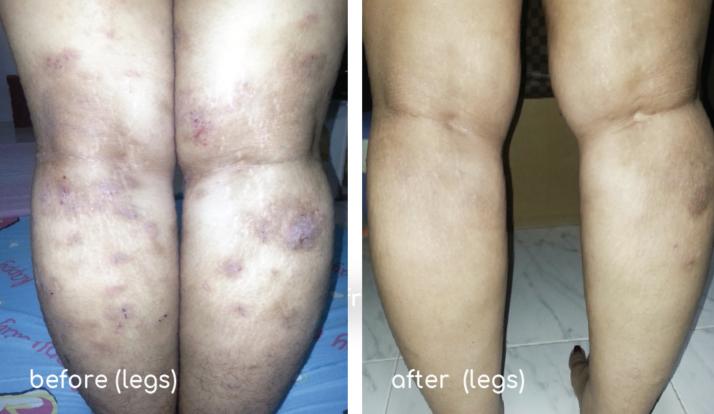 Fanny-eczema (legs)