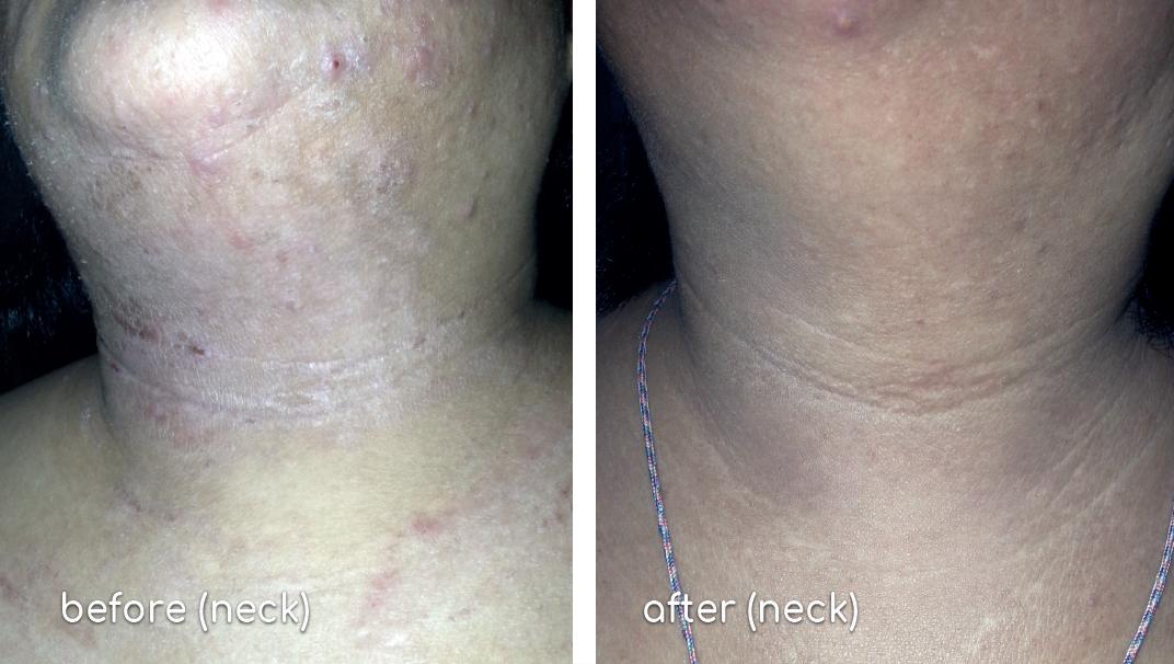 Fanny-eczema (neck)