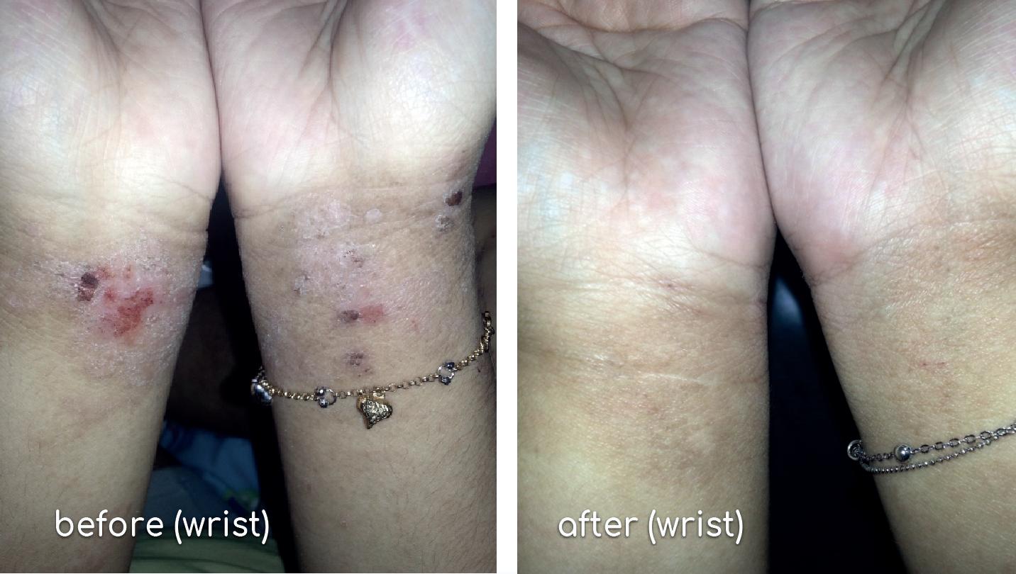 Fanny-eczema (wrist)